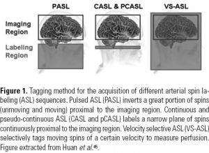 Figure 1. Tagging method for the acquisition of different arterial spin labeling (ASL) sequences. Pulsed ASL (PASL) inverts a great portion of spins (unmoving and moving) proximal to the imaging region. Continuous and pseudo-continuous ASL (CASL and pCASL) labels a narrow plane of spins continuously proximal to the imaging region. Velocity selective ASL (VS-ASL) selectively tags moving spins of a certain velocity to measure perfusion. Figure extracted from Huan et al.45.