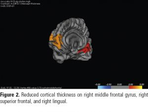 Figure 2. Reduced cortical thickness on right middle frontal gyrus, right superior frontal, and right lingual.