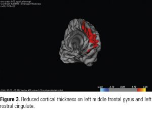 Figure 3. Reduced cortical thickness on left middle frontal gyrus and left rostral cingulate.