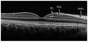 Figure 2. Measurement of the GCL and IPL thicknesses with spectral OCT. GCL: Ganglion Cell Layer; IPL: Inner Plexiform Layer; RNFL: Retinal Nerve Fiber Layer; OCT: Optical Coherence Tomography.
