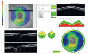 Figure 1. Evaluation of retinal nerve fiber layer thickness with OCT. S: superior; I: inferior; T: temporal; N: nasal.