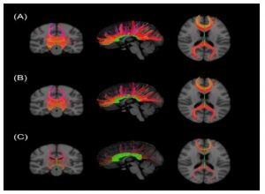 Figure 1. TBSS-based comparison of MRI examinations of white matter structures, especially CC connections, between a HC reference group (A), FE-SCZ-D patients (B), and FE-SCZ-nD patients (C).